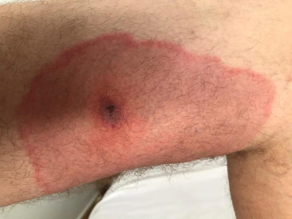 Picadura de araña en un brazo en Murcia